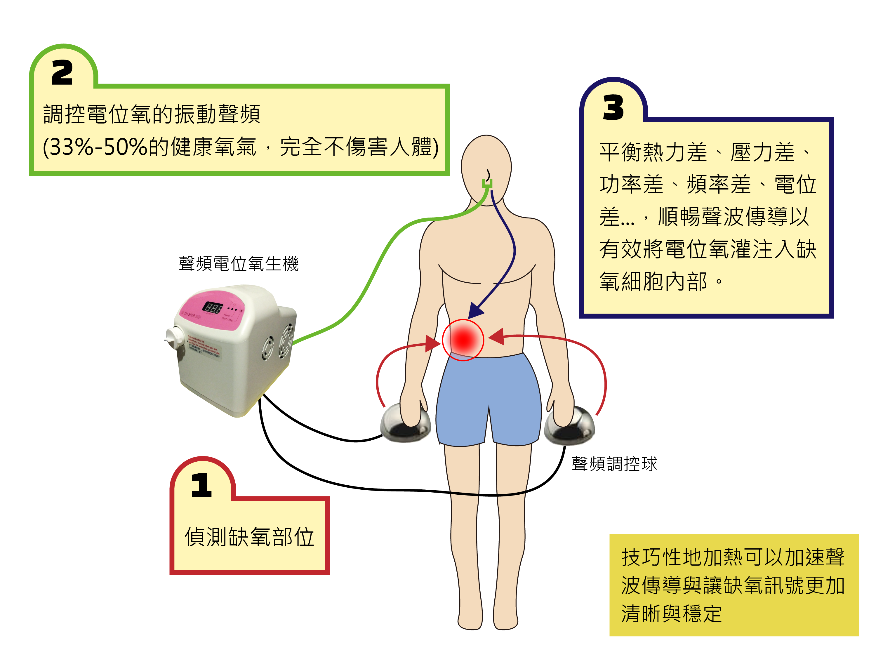 The working principles of TreatU Potential Oxygen System